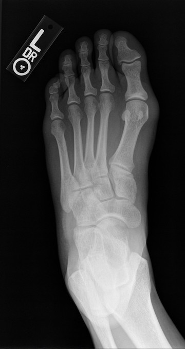 Post-operative radiograph. Lisfranc injuries are complicated injuries characterized by ligament tears, fractures, and the dislocation of bones in the midfoot.