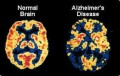 Alzheimer's and Dementia as an Outsider