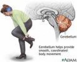 Picture courtesy of Medline Plus  www.nlm.nih.gov. The cerebellum appears in red.