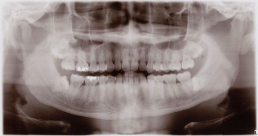 X-ray of mouth shows damage from clinching and grinding.