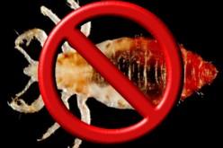 Eliminating Head Lice When Prescription Treatments Fail