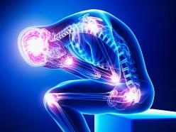 Fibromyalgia: The Basics
