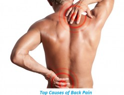 Top Causes of Back Pain