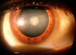 Eye care - Cataract Operations