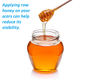 Raw honey helps reduce the visibility of scars on your skin
