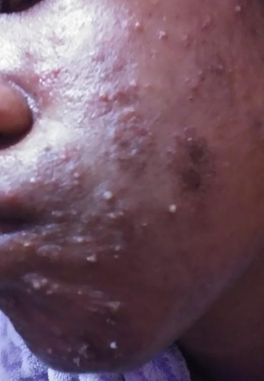 acne + impetigo