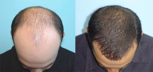 (photo credit mcgrathmedical.com) Cheap Hair Transplant