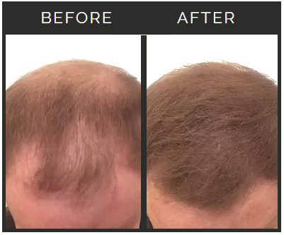 Personal images when applying hair fibers to my own thinning hair.