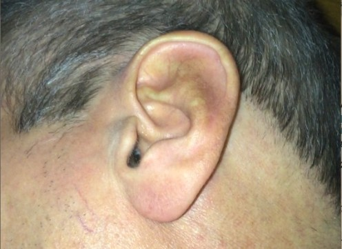 The Correct Way to Remove Impacted Earwax That Worked for Me