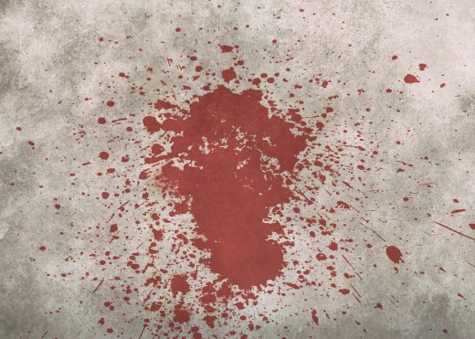 Clean up that blood spatter right away!