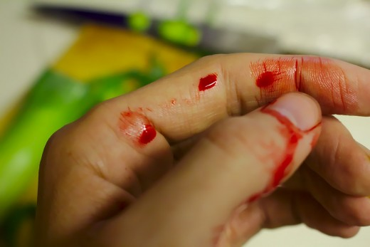 Cut wounds needing stiches can occur when handling trash.