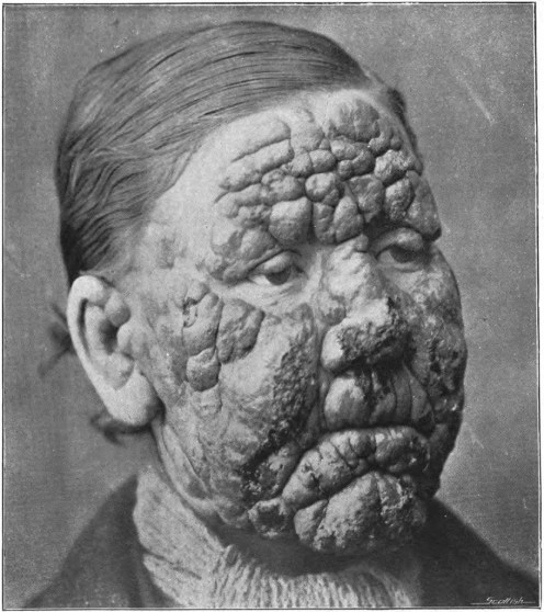 Leprosy can cause severe facial disfigurement.