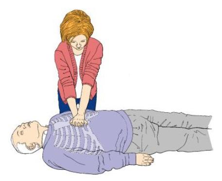 Figure 6. External heart massage.