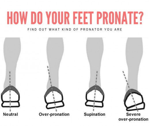 Find Your Foot Type (Pronator, Supinator, or Neutral) | HubPages