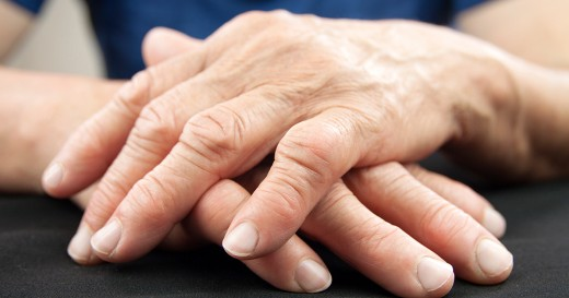 Some people with RA have a more severe form of the condition where fatigue, pain, persistent inflammation leads to joint damage, disease complications, and disability.