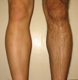 Leg Shaving For Men | RM.
