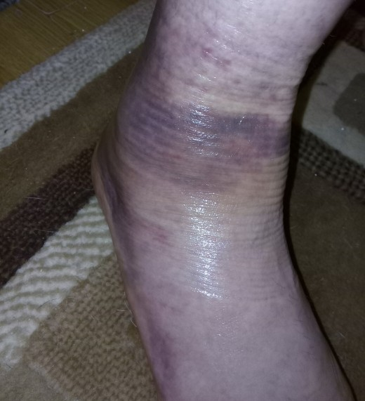 Delightful shades of deep purple adorn my foot and ankle...