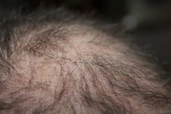 My Experience Using Cellfood Drops Supplement for Hair Loss