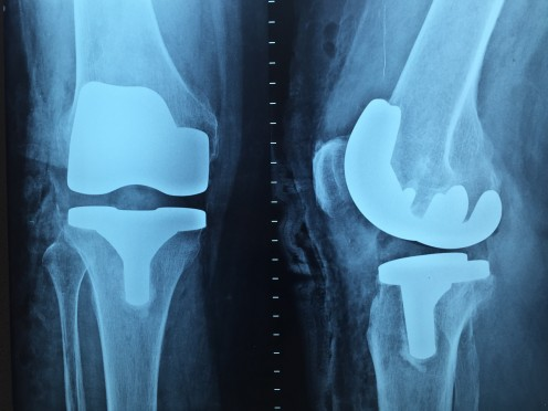 Many osteoarthritis sufferers are forced to have knee replacements.