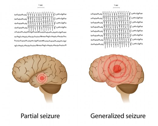 A person's brain waves with a partial(left) and generalized(right) seizure.