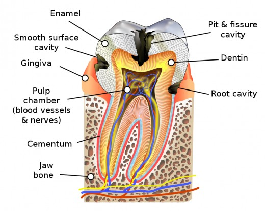 Diagrammatic cross-section of a tooth showing how cavities damage the protective enamel.