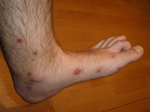 Mosquito bites are itchy and unsightly. They can become infected if scratched.