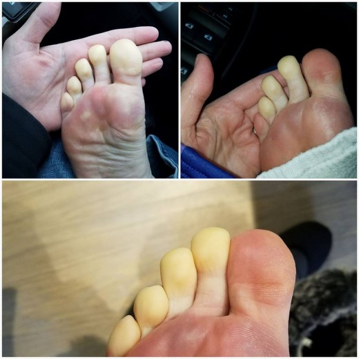 Patient with Primary Raynaud's has been dealing with symptoms for 32 years.
