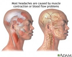 How to prevent headache and get rid of headache medication for good