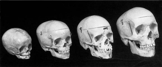 The skulls of an infant (approximately 8 months of age), a 5- to 6-year-old, a 10- to 12-year-old, and an adult. Note the bony craniofacial changes with increasing age.