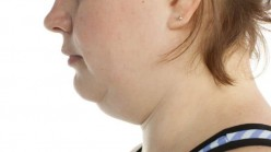 3 Ways to Get Rid of A Double Chin
