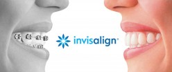Is Invisalign Worth It? (Content Is Not Sponsored)