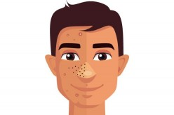 A Guide on How to Get Better Skin and Reduce Spots/Pimples
