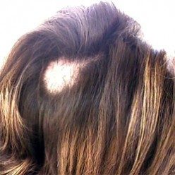 Trichotillomania - The disease of pulling your hair out