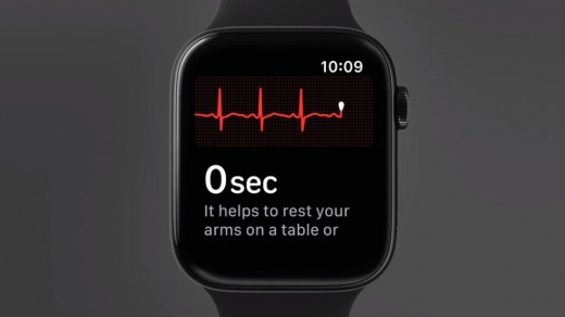 Typical ECG display on Apple watch