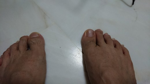 I cannot bend my right big toe first knuckle, unlike my left
