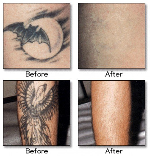 Advantage Laser Clinic - Tattoo Removal (photo credit www.cadizlaserspa.com)