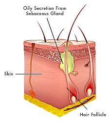 How Pimple or Acne is formed