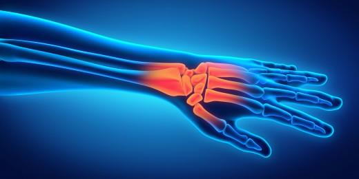 Hand & Wrist Injuries