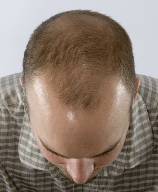 "The typical ""M"" shape of male pattern baldness."