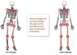 A Deeper Look Into Body Misalignments