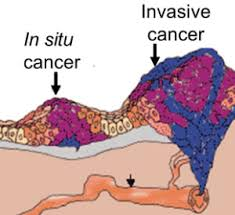 My cancer was In Situ.