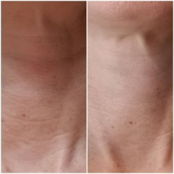 How to Get a Firmer Smoother Neck!
