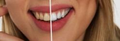 What Factors Create the Perfect Smile