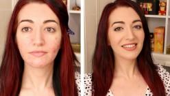 Best Tips for Applying Makeup on Acne-Prone Skin