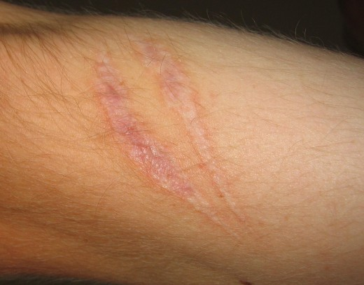 Honey can make scars less visible.