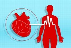 Understanding HYPERTENSION (High Blood Pressure): A Research Paper
