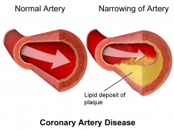 Key Information About Coronary Artery Disease