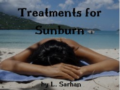 Treatments for Sunburn