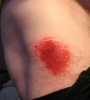 Ow!  Road Rash