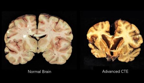 Brain on right damaged by chronic traumatic encephalopathy.